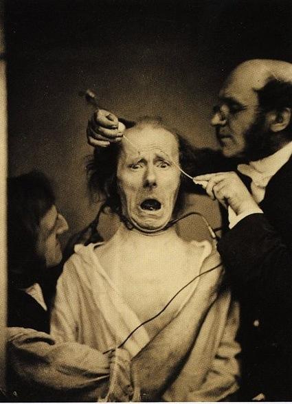 0Guillaume_Duchenne_de_Boulogne_performing_facial_electrostimulus_experiments.jpg