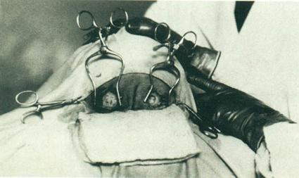 0i0fototransplante-61.jpg
