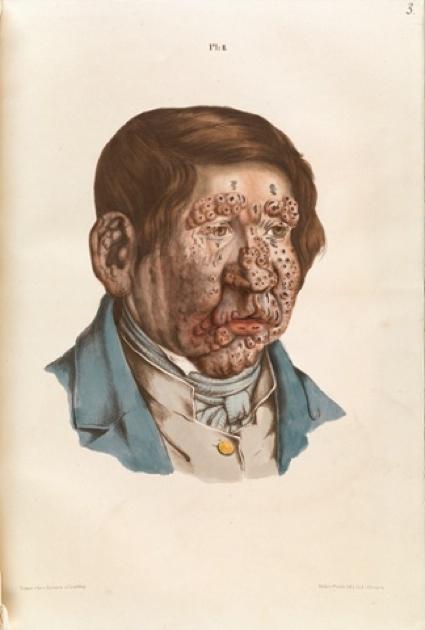0i13leprosy8815bf-324x480.jpg